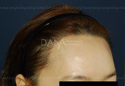 韩国多娜-发际线调整对比图