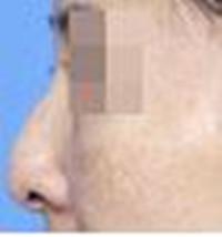 鹰钩鼻矫正对比图