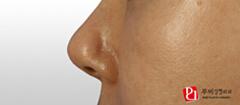 隆鼻整形对比案例