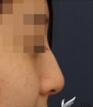 隆鼻手术整形对比案例