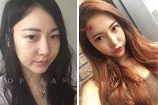 20岁妹子在韩国Top Class医院蝶变整形经历