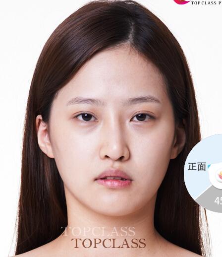 韩国顶级整形-切开法+开眼角+颧骨缩小+V线条缩小整形案例