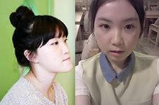 分享我在韩国Barbie Face医院整形后记