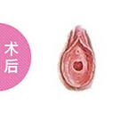 处女膜修复整形对比案例