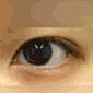 双眼皮整形对比案例