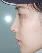 隆鼻整形前后对比案例图