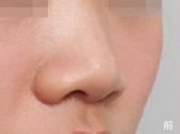 韩国NYPS整形外科医院-隆鼻手术案例对比图