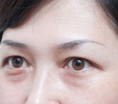 去眼袋手术案例对比图