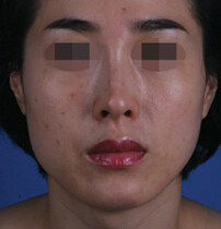面部脂肪填充对比案例