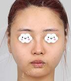 面部轮廓手术对比案例