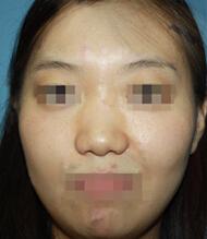 隆鼻+鼻头矫正对比案例