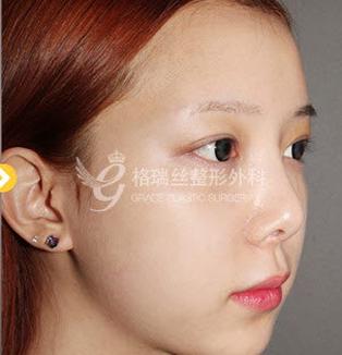 面部脂肪填充案例对比图_术后