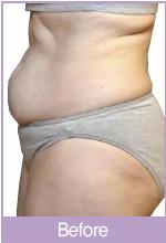 韩国VIZ整形外科-激光瘦腹部对比图