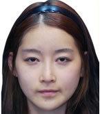 眼睛+鼻子+脂肪填充综合整形对比案例