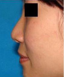 假体隆鼻手术案例对比图