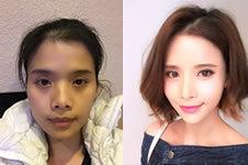 在韩国爱我整形后,孩子说我像18岁!