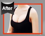 内窥镜隆胸整形对比案例