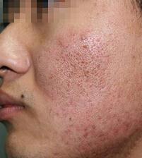韩国安成烈整形外科祛痘印整形对比案例