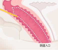 韩国如妍妇科医院-阴道整形对比图