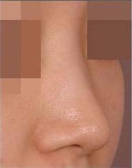 韩国伍人整形外科-隆鼻手术案例对比图