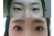 """双眼皮+开内眼角30天后,现在的眼睛""""会说话"""""""