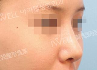 驼峰鼻矫正对比案例