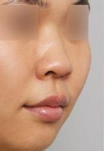 隆鼻手术案例对比图