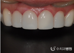 牙齿矫正案例对比图