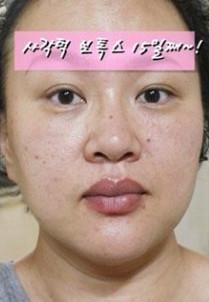 dk韩东均整形外科-瘦脸针对比图