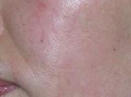 祛痘疤对比图