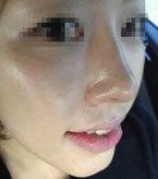 隆鼻失败手术对比案例