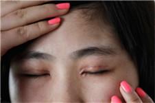 割双眼皮后留下的疤痕怎么修复?