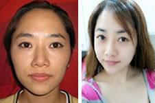 33岁沧桑女变童颜,竟然在韩国TL只做了3个项目!