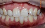 牙齿整形对比案例