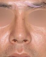 ?韩国歪鼻矫正整形对比案例