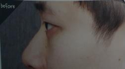 男性鼻子整形案例