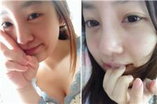 韩国耶斯整形外科医院做的鼻整形效果好吗?