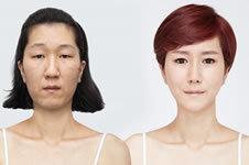 网上说的韩国整容技术真有那么好?