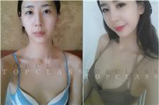 韩国口碑好的胸部整形医院是Topclass吗?