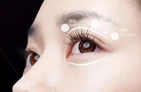 眼皮衰老,下垂,浮肿,该如何修复?