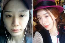 【隆鼻+脂肪移植】一位妹子所经历的赴韩整形坎坷路
