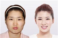 韩国博朗温整形外科医院做脸型效果好不好?