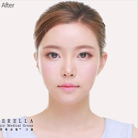 鼻部修复对比图