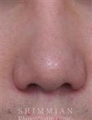 韩国心美眼整形-歪鼻矫正手术案例对比图