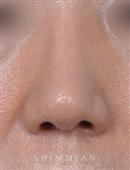 韩国心美眼整形-隆鼻手术案例对比图
