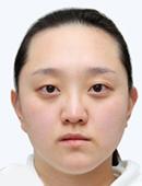 韩国FACE-LINE整形外科-双鄂手术、V-line下巴缩小术等六项手术让她改变效果非常大