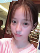 韩国在敦整形外科-她在韩国在敦做了隆鼻 恢复非常自然