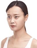 双眼皮手术和全脸脂肪填充之后效果自然吗?