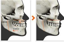 凸嘴手术韩国的矫正价格是多少?