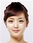 韩国博朗温全脸整形六个月全记录